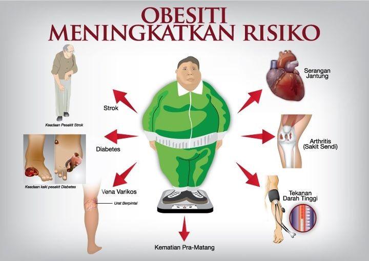 Cegah Dan Atasi Obesitas